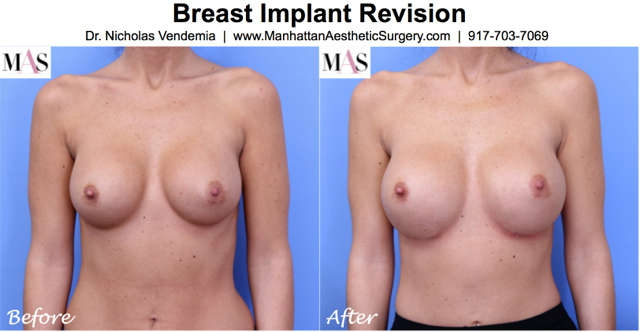Breast Revision 17 Breast Implant Revision Surgery Manhattan | NYC | New York City