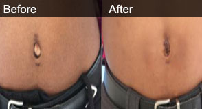 Orlistat before and after