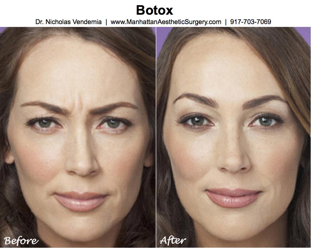botox-181.jpg
