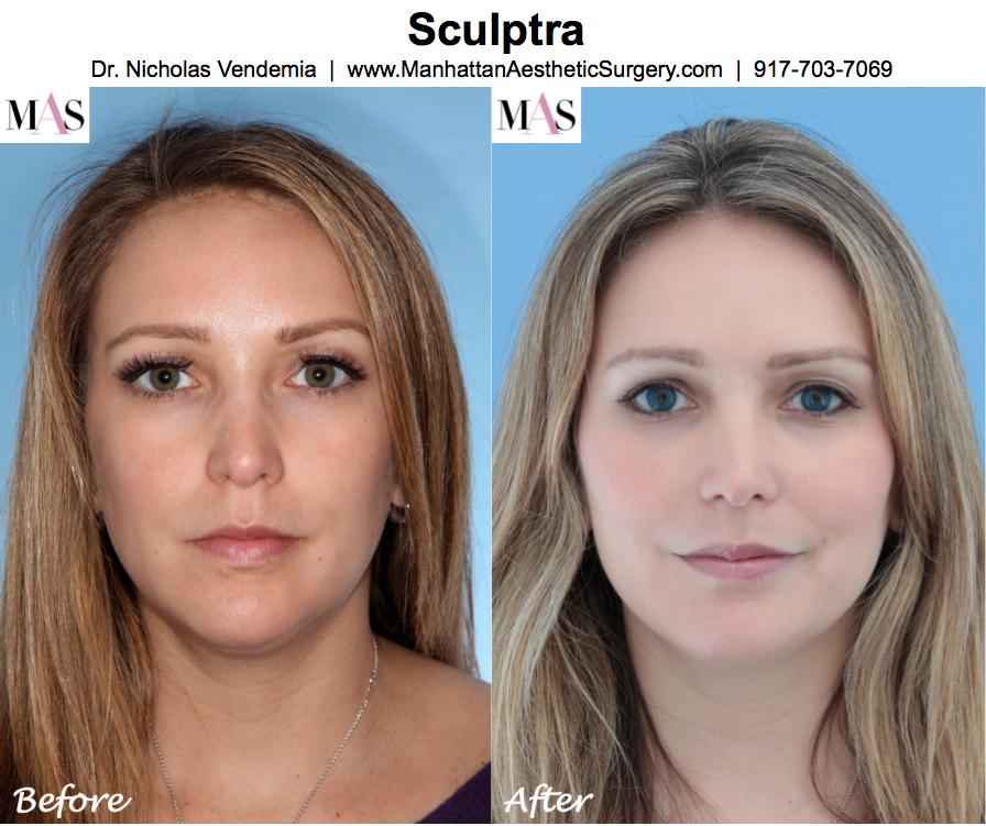 cheap plastic surgery