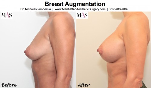 Breast Images breast enlargement new york