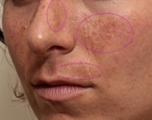 melasma treatments, hyperpigmentation treatments