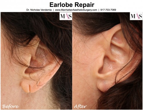 how to fix torn earlobe without surgery