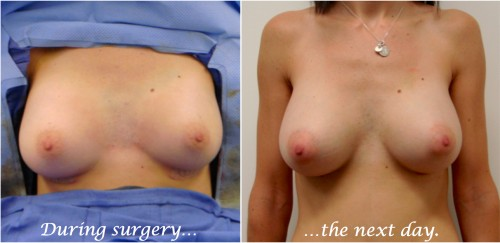 breast implants during surgery and one day after