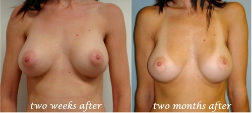 breast implants settle 2-3 months after surgery