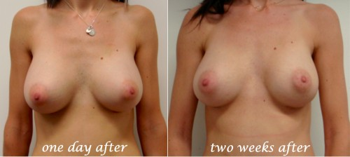 breast implants 2 weeks after surgery, breast implants drop after surgery