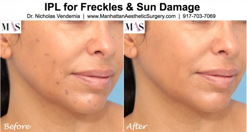 IPL treatments for summer sun damage and freckles