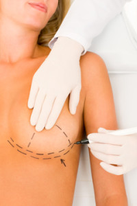 breast augmentation surgery manhattan, nyc, new york city