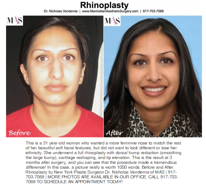 rhinoplasty before and after pictures dr. v
