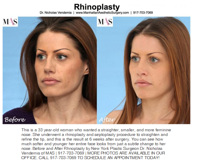 rhinoplasty  nose job before and after photos dr. v