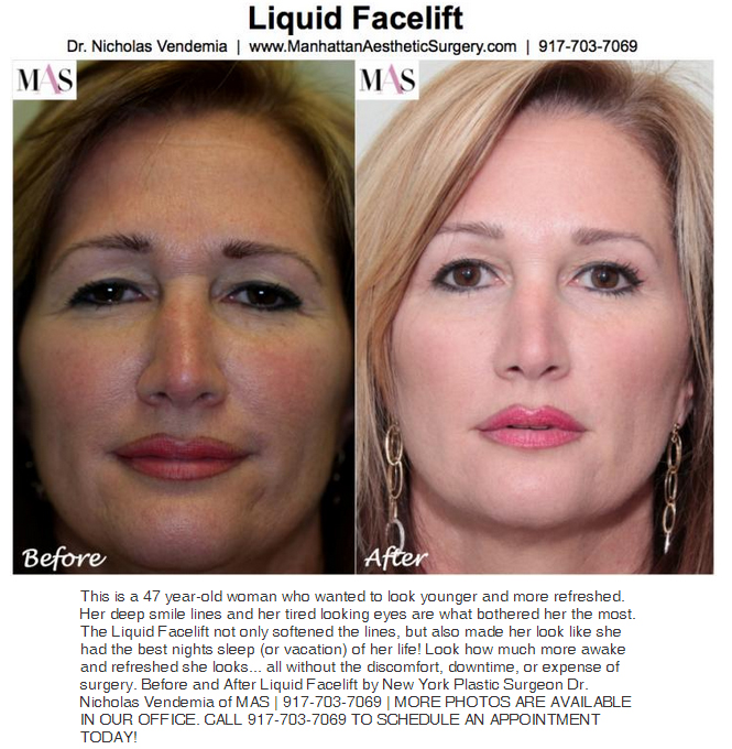 laser liquid facelift