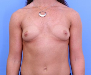 breast augmentation nyc before and after photos manhattan | New York City