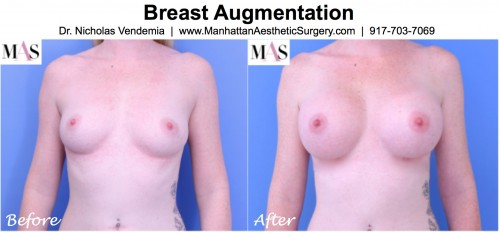 before and after photo breast augmentation front view 371cc moderate profile silicone breast implants