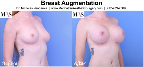breast augmentation in new york before and after photos B cup to D cup