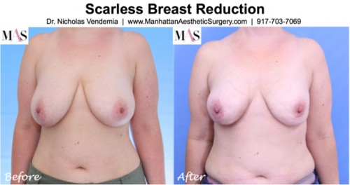 before and after photo front view of scarless breast reduction