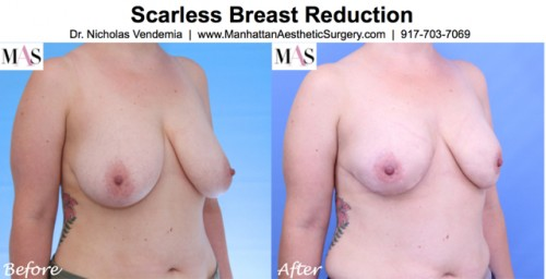 scarless breast reduction before and after photos