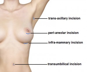 incision choices for breast augmentation