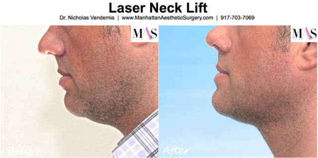 What is a laser neck lift?