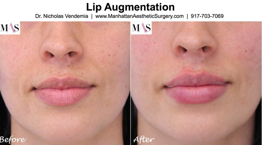 Lips augmentation for smoother lips