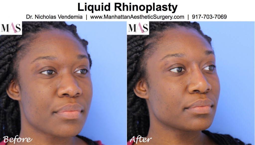 Liquid Rhinoplasty before and after photo