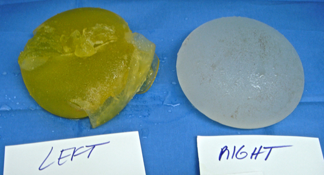 PIP breast implant removal
