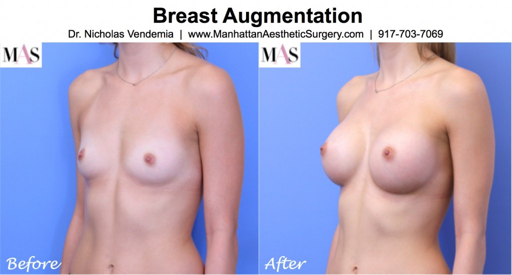 rapid recovery breast augmentation new york