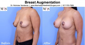 breast augmentation after mastopexy