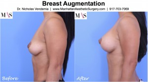 breast implants after breast lift