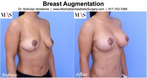 breast augmentation after breast lift