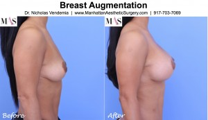 breast lift and breast implants