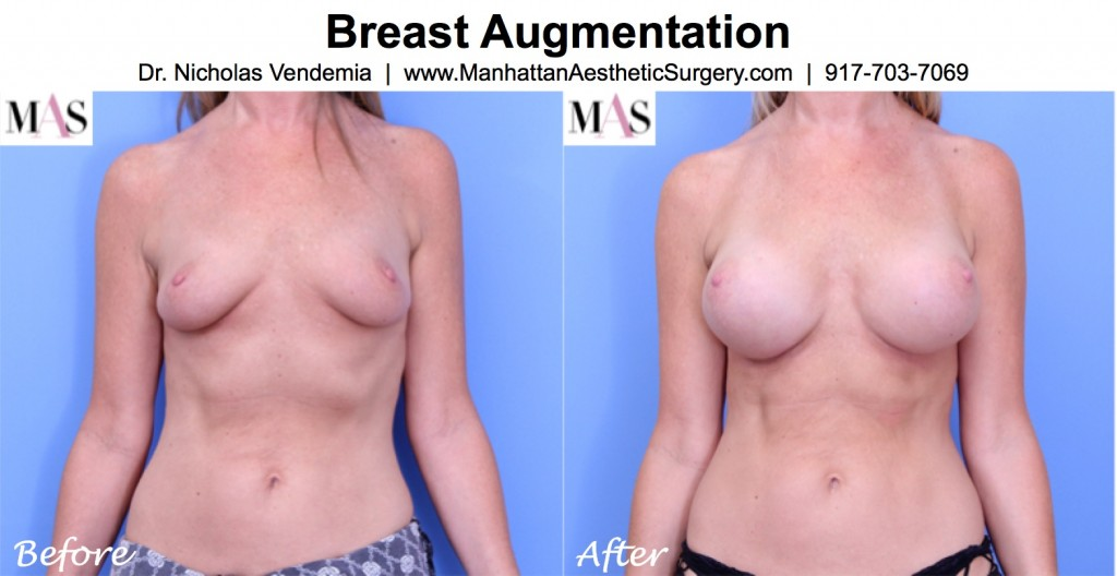 before and after photo 2 months after breast augmentation