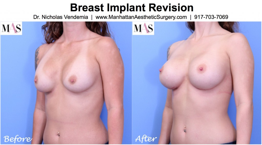 Before and After breast implant exchange surgery