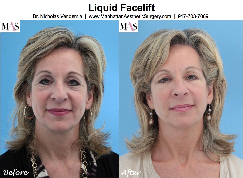 Liquid-Facelift-1