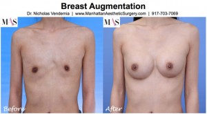 asian breast augmentation smooth round moderate profile implants