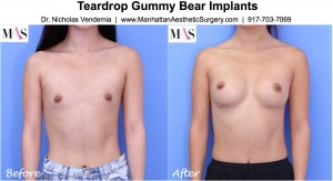gummy bear implants better for Asian breast augmentation
